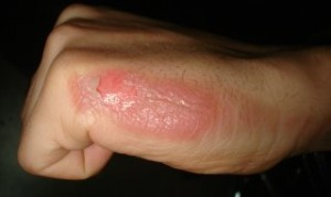 How To Treat Burns on Hands With Blisters