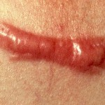 What Cause Keloid Scars and How to Treat Keloid Scars?