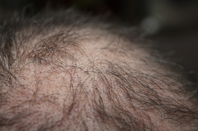 Psoriasis itself will not cause your hair to fall out 3