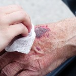 How to manage skin tear in elderly