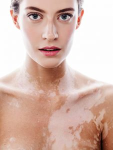 Does Stress Cause Vitiligo