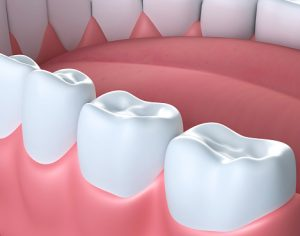 How To Stop Gum Bleeding After Tooth Extraction