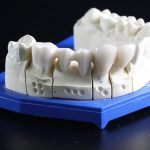 How to treat wisdom tooth infection?