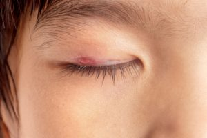 Eye Sty Causes & Symptoms