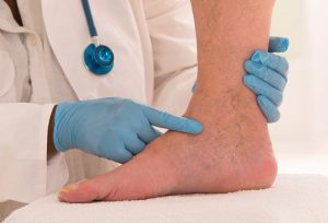 What to Do if Varicose Vein Bursts