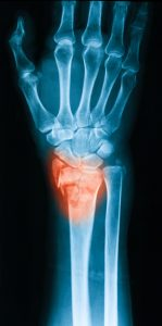 X-ray image of wrist joint - Distal Radius Fractures