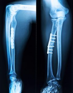 X-ray of fractured leg bone - Tibial Shaft Fracture