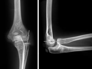 Radial Head Subluxation - Fracture on Elbow