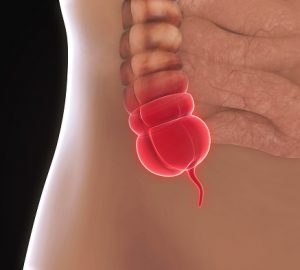 How To Prevent Appendicitis