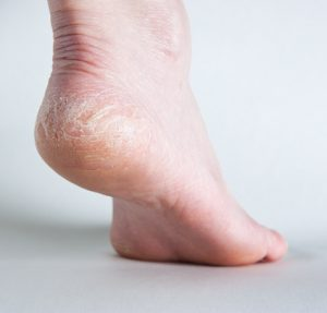 How to Heal Cracked Bleeding Feet