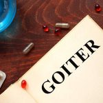 How To Treat Goiter With and Without Surgery
