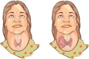 Does swollen lymph node in the neck mean cancer?