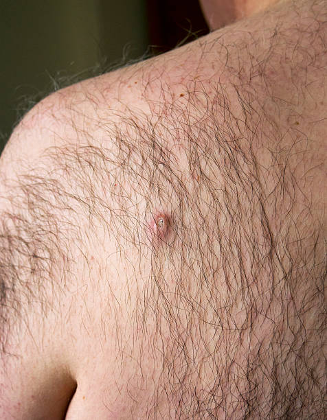 pilonidal cyst treatment without surgery - how to do it? - wound, Skeleton
