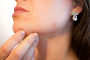 How To Treat An Open Wound On Face From Picking